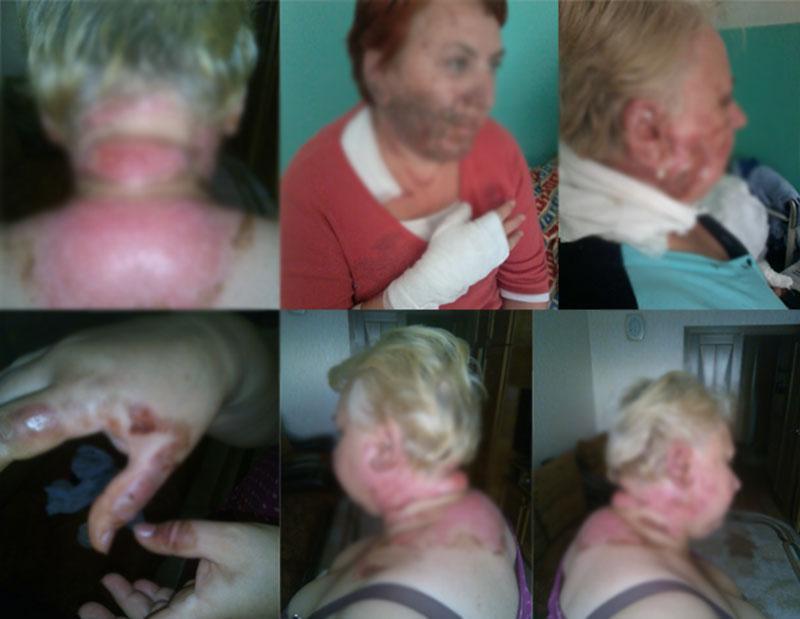 В бобруйском кафе во время подачи шашлыков загорелись две женщины