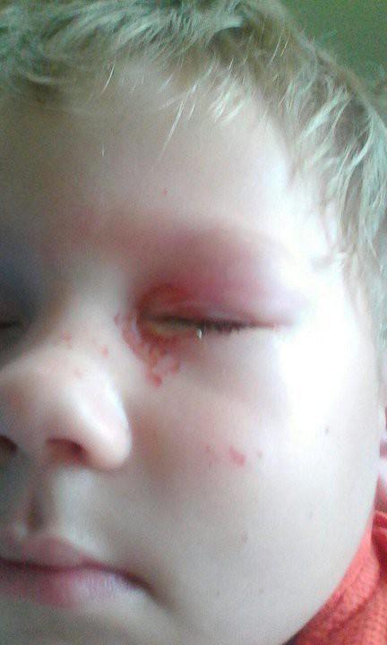 «Обожжены щека и глаз». Во время салюта на «Дожинках» трехлетний мальчик получил ожог глаза