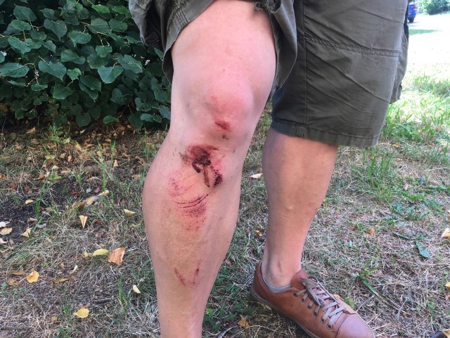 «Минус четыре зуба, подбитый глаз». В Гродно задержали и избили журналиста, потом осудили за пять минут